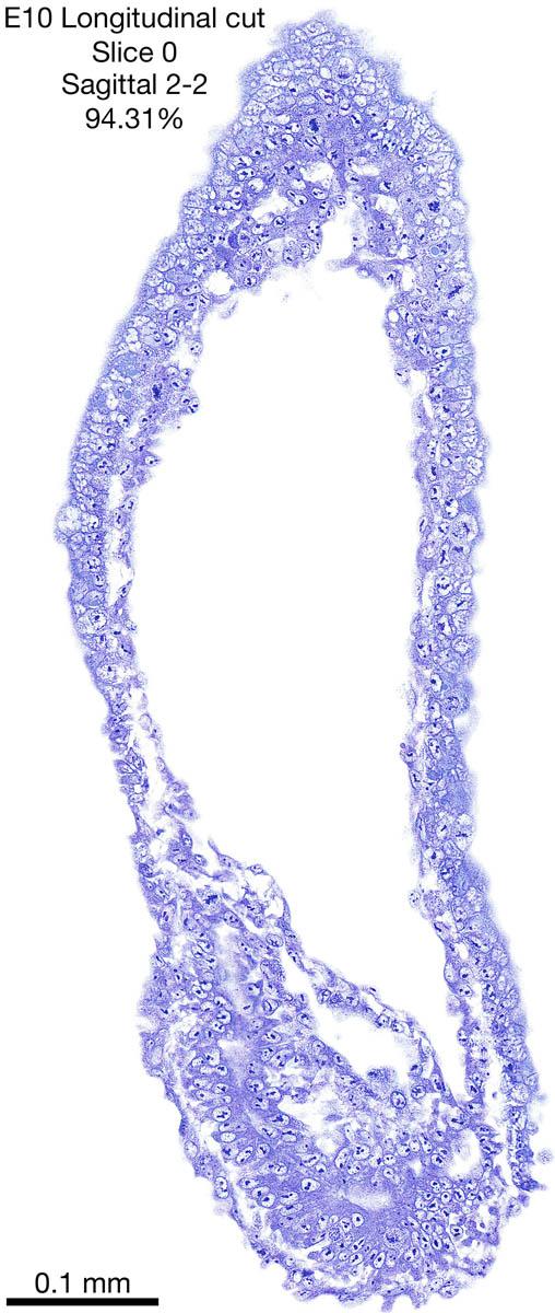 0-E10-sagittal-2-2