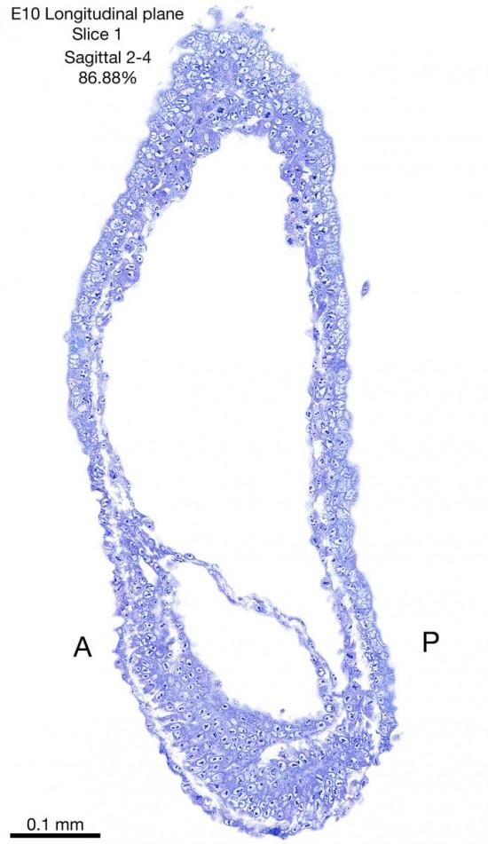 01-E10-sagittal-2-4