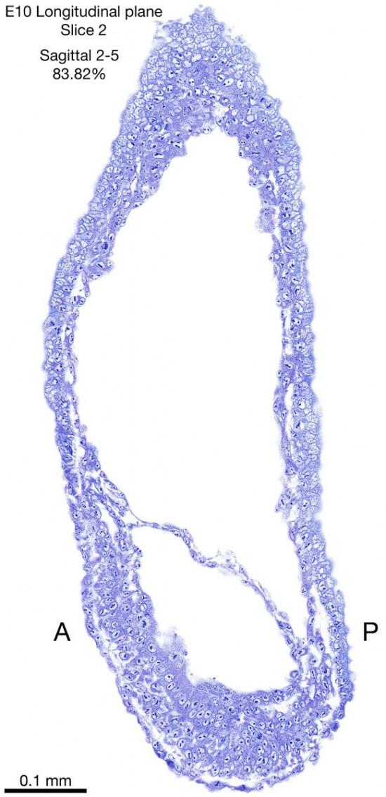 02-E10-sagittal-2-5