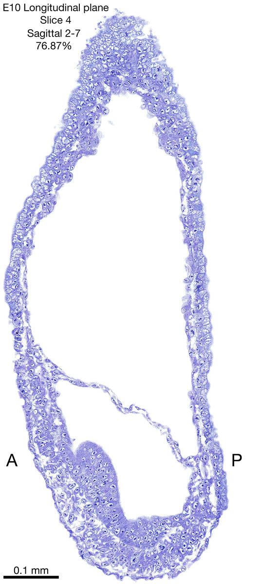 04-E10-sagittal-2-7
