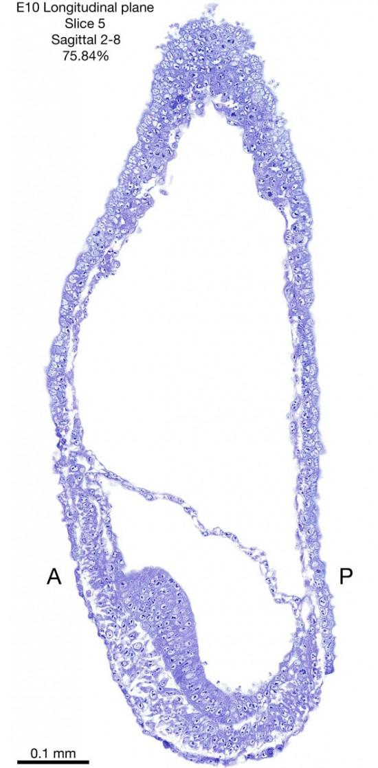 05-E10-sagittal-2-8