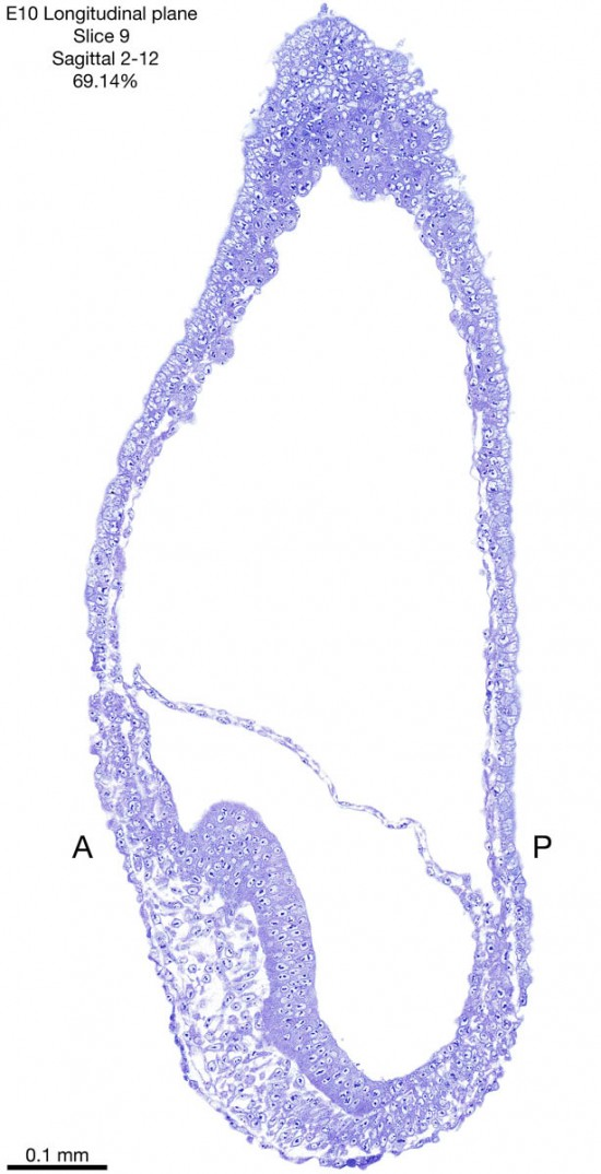 09-E10-sagittal-2-12