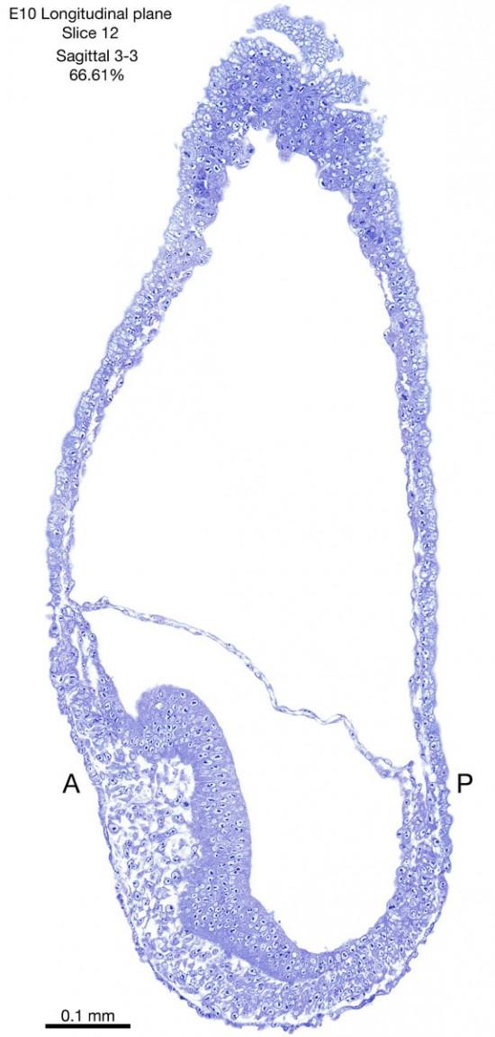 12-E10-sagittal-3-3