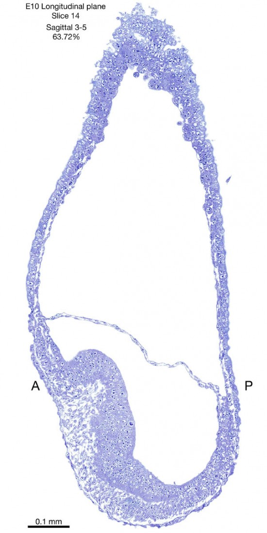 14-E10-sagittal-3-5