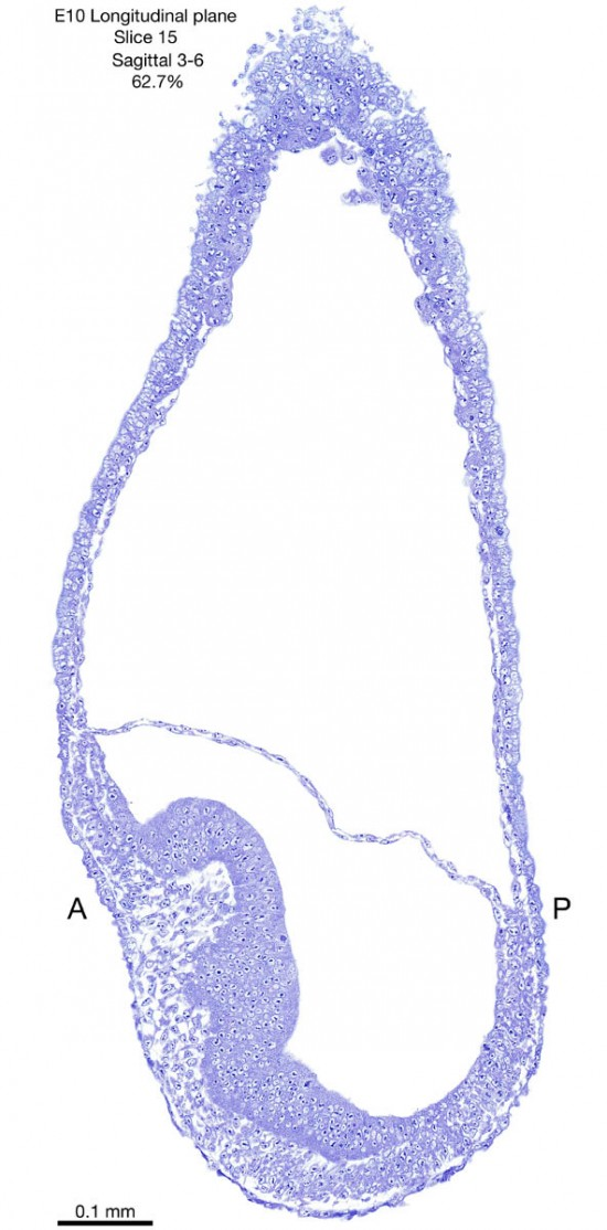 15-E10-sagittal-3-6