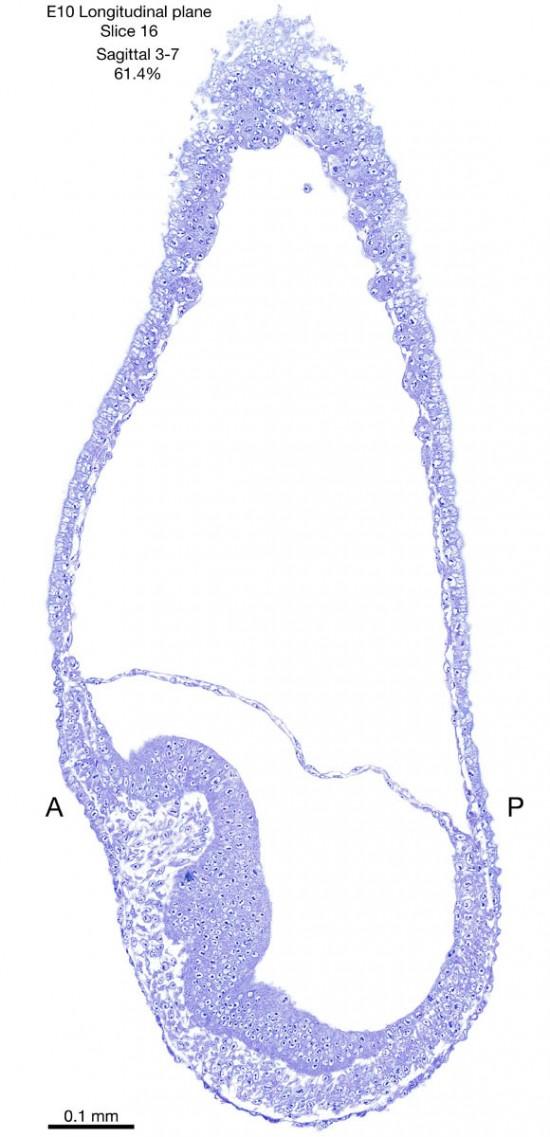 16-E10-sagittal-3-7
