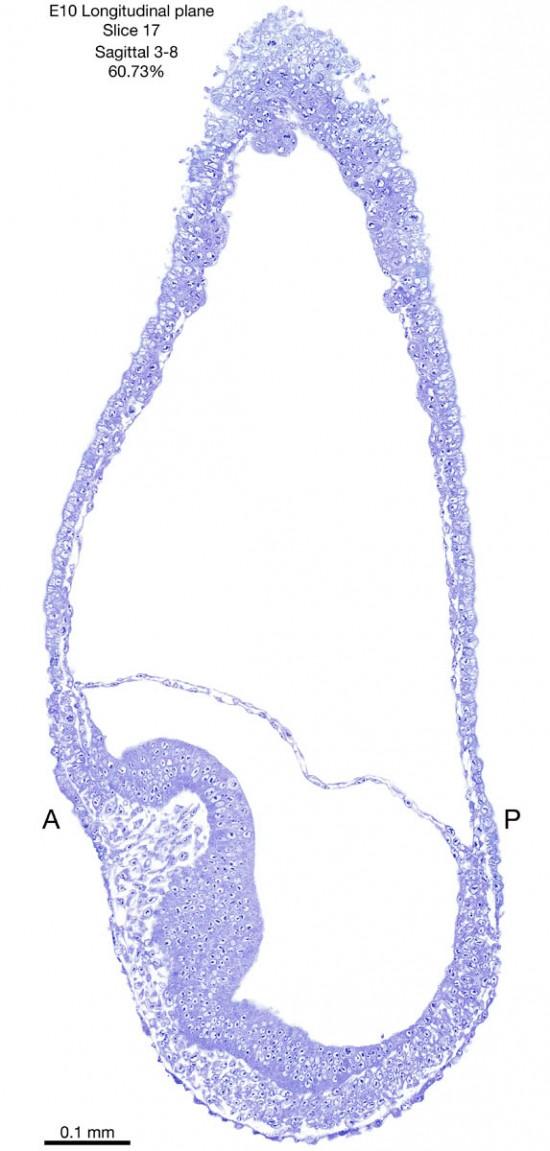 17-E10-sagittal-3-8