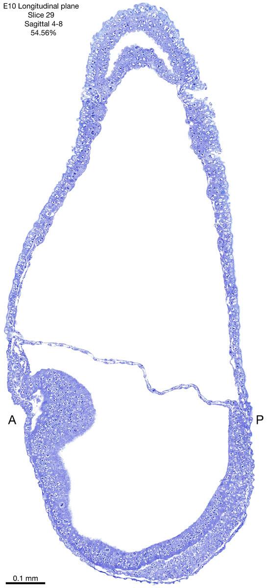 29-E10-sagittal-4-8