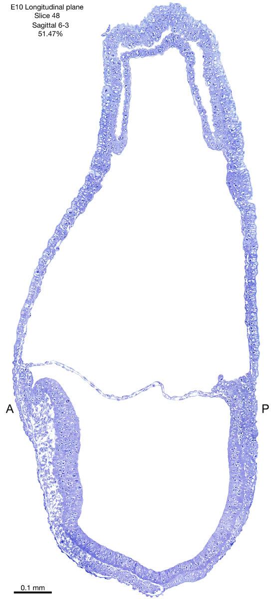 48-E10-sagittal-6-3
