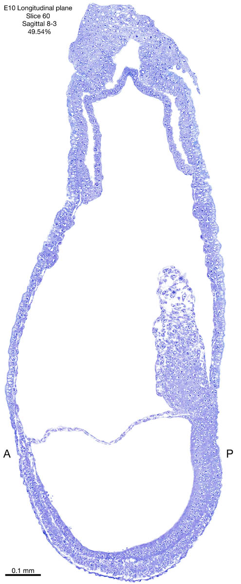 60-E10-sagittal-8-3