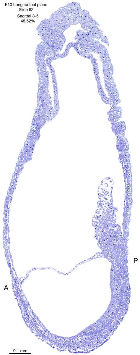 62-E10-sagittal-8-5
