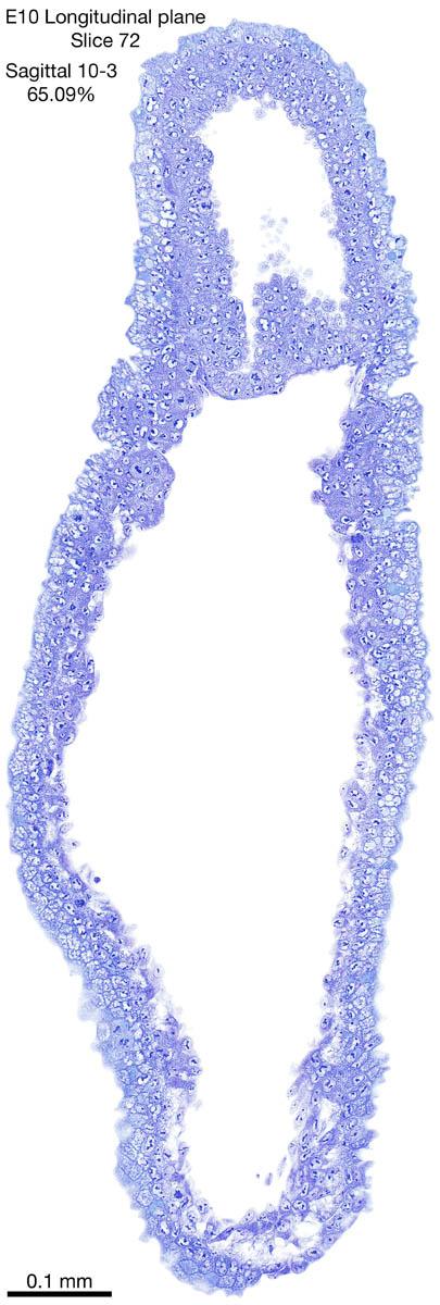 72-E10-sagittal-10-3