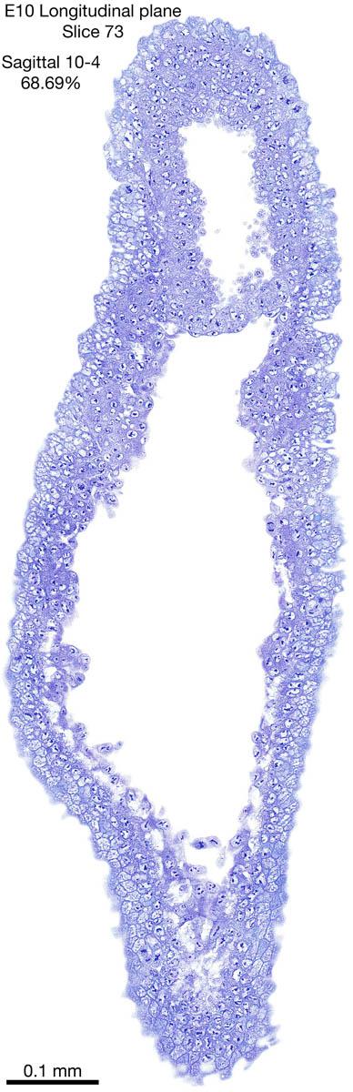 73-E10-sagittal-10-4