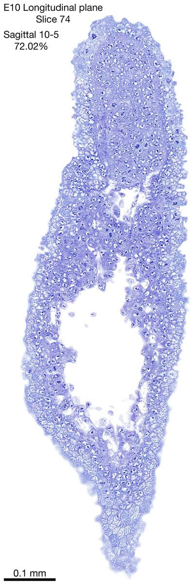 74-E10-sagittal-10-5