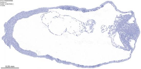 0-2-E10-5-coronal-12-3