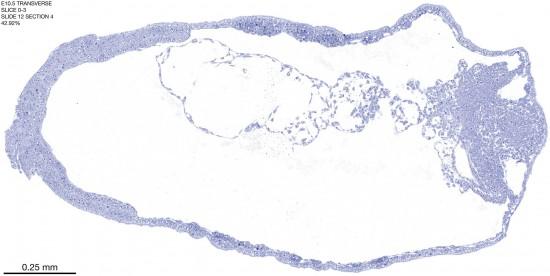 0-3-E10-5-coronal-12-4