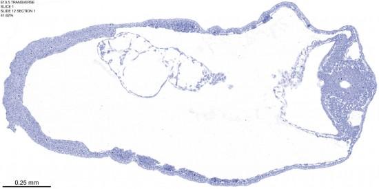 01-E10-5-coronal-12-1