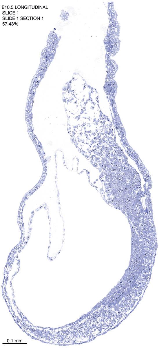01-E10-5-sagittal-1-1
