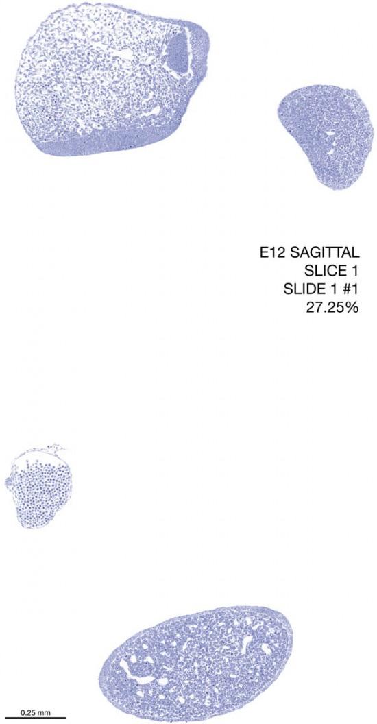 01-E12-sagittal-1-1