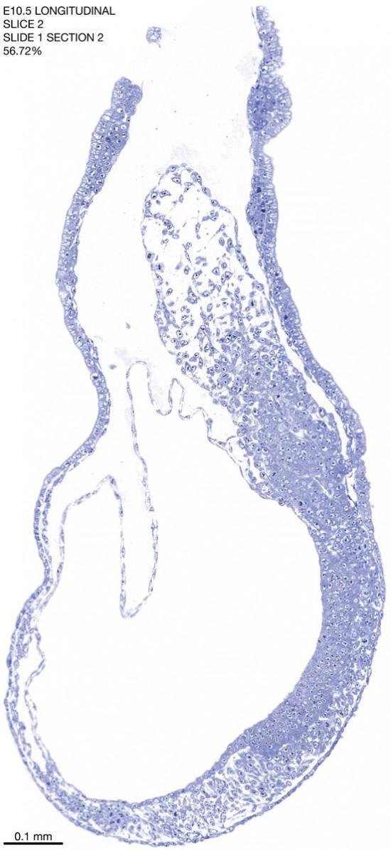 02-E10-5-sagittal-1-2