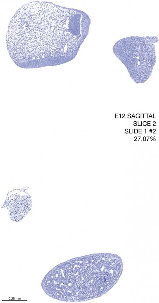 02-E12-sagittal-1-2
