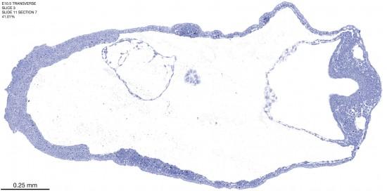 03-E10-5-coronal-11-7