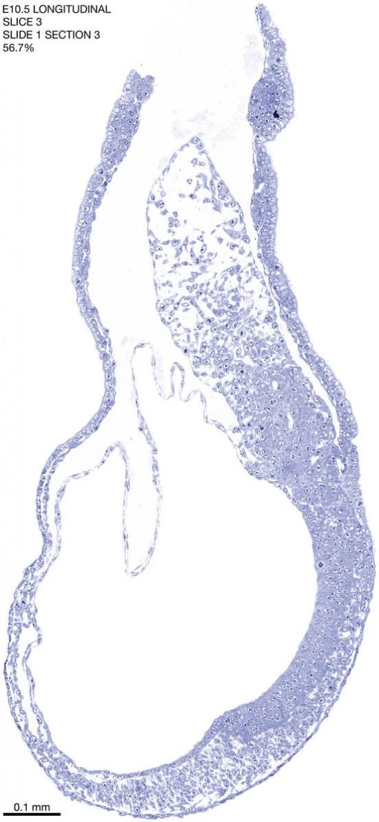 03-E10-5-sagittal-1-3