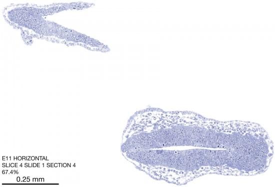 04-E11-horizontal-1-4