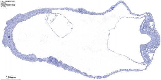 05-E10-5-coronal-11-5