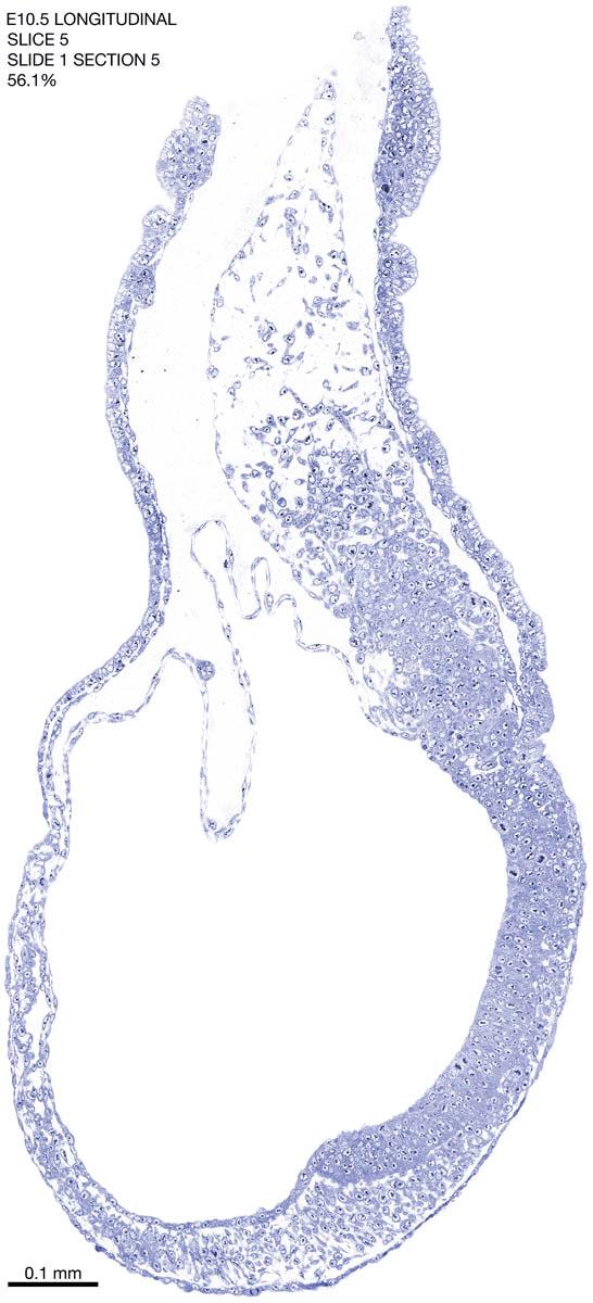 05-E10-5-sagittal-1-5