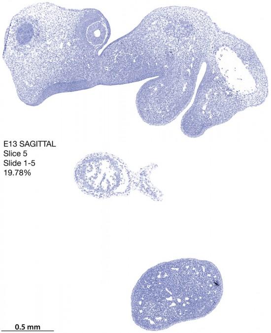 05-E13-sagittal-1-5