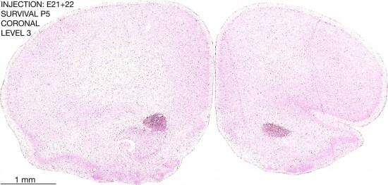 05-E21-22-to-P5-3-2-brain