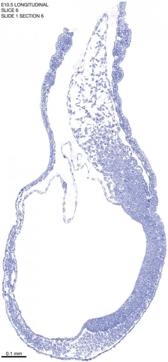 06-E10-5-sagittal-1-6