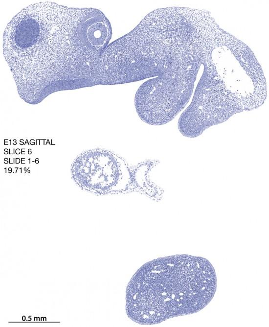 06-E13-sagittal-1-6