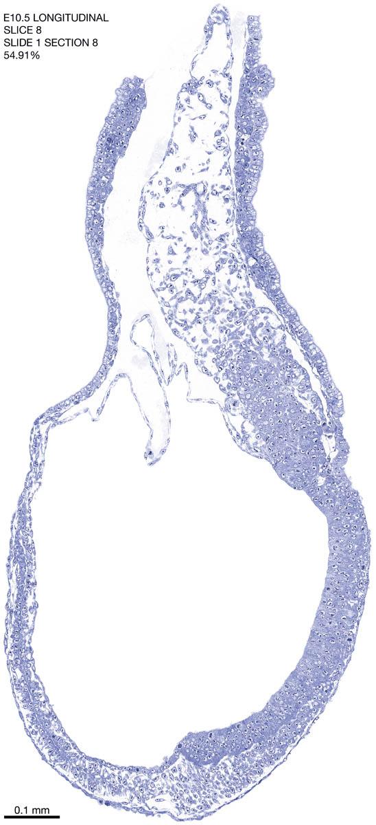 08-E10-5-sagittal-1-8