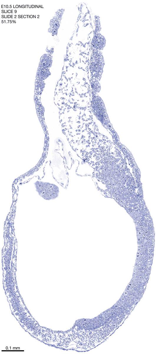 09-E10-5-sagittal-2-2