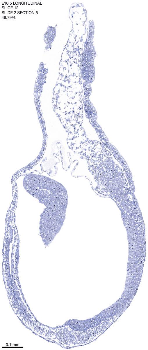 12-E10-5-sagittal-2-5