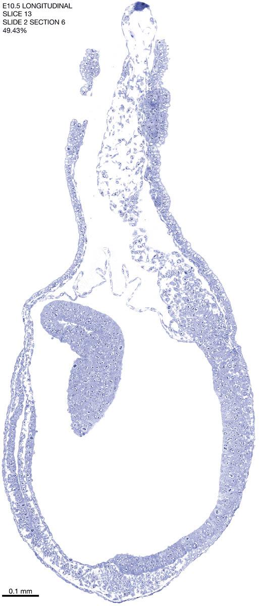 13-E10-5-sagittal-2-6