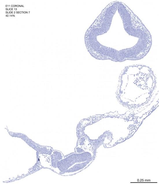 13-E11-coronal-2-7