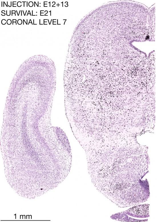 13-E12-13-coronal-7-21C3-brain