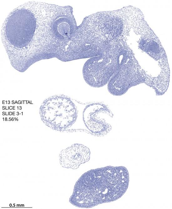 13-E13-sagittal-3-1