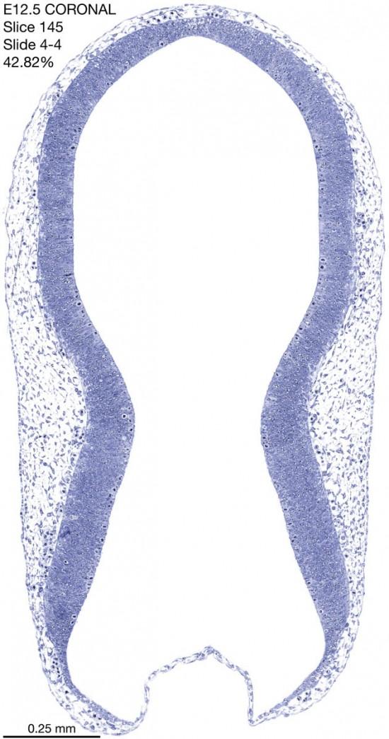 145-E12-5-coronal-4-4