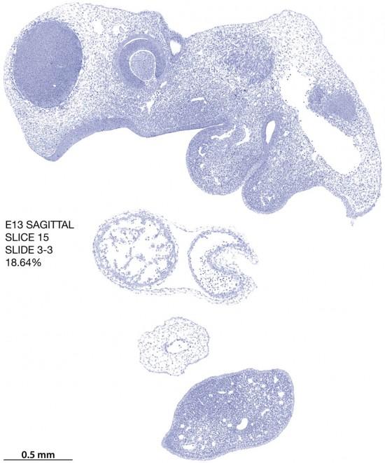 15-E13-sagittal-3-3