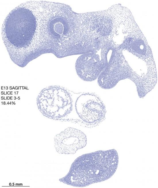 17-E13-sagittal-3-5