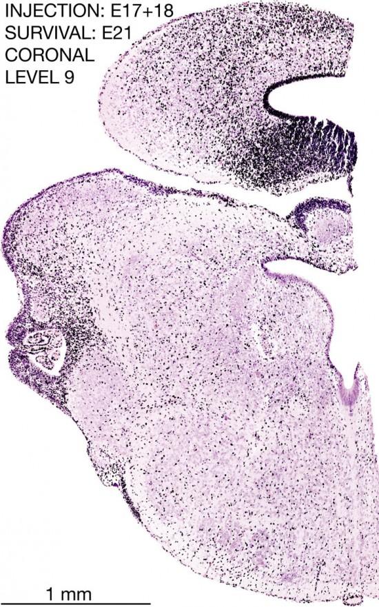 17-E17-18-Coronal-9-7D6-brain