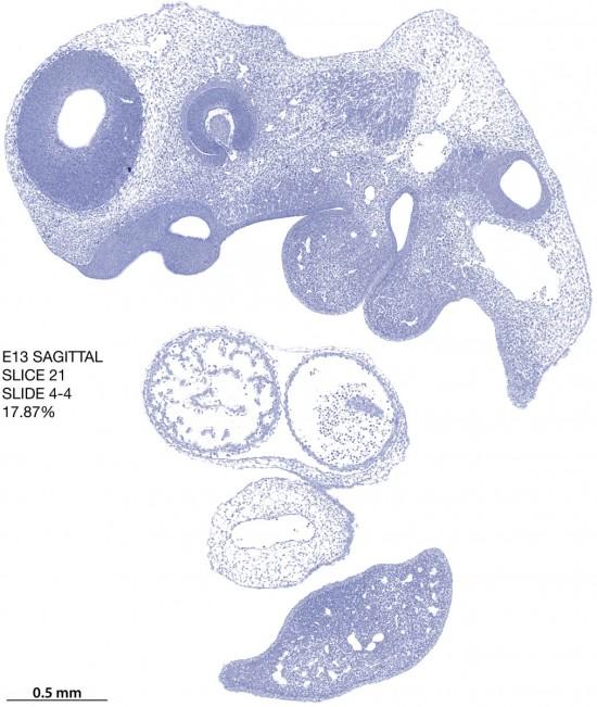 21-E13-sagittal-4-4