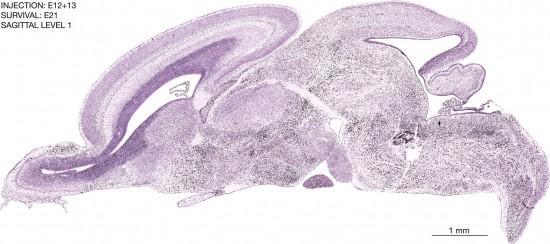 23-E12-13-sagittal-1-5A3-brain