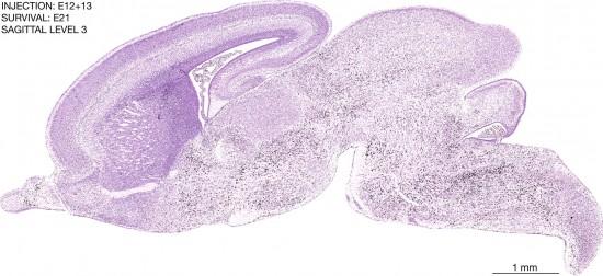 27-E12-13-sagittal-3-7B3-brain