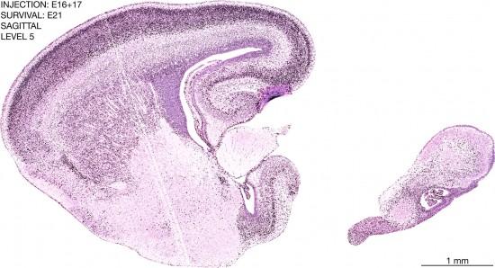 29-E16-17-sagittal-5-9A1-brain