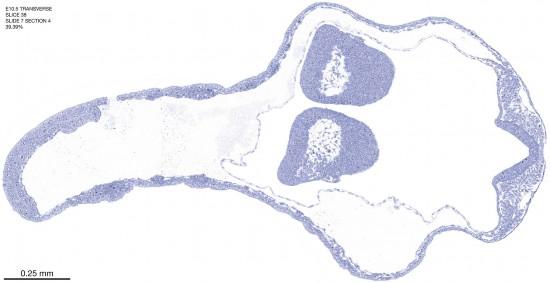 38-E10-5-coronal-7-4